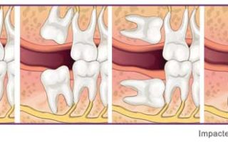 Dentalogy Dental Care - Operasi Gigi Bungsu, Wisdom Tooth 7