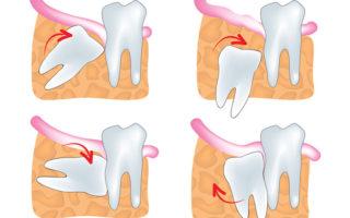 Dentalogy Dental Care - Operasi Gigi Bungsu, Wisdom Tooth 9