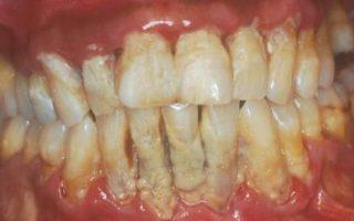 Dentalogy Dental Care - Pembersihan karang gigi, teeth scaling polishing 10