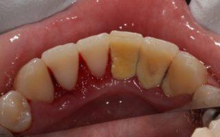 Dentalogy Dental Care - Pembersihan karang gigi, teeth scaling polishing 2