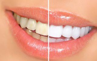 Dentalogy Dental Care - Pemutihan Gigi, Philips Zoom 4