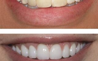 Dentalogy Dental Care - Pemutihan Gigi, Take home tray 8