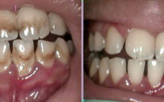 Dentalogy Dental Care - Perawatan Gigi Perokok 2