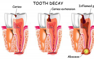 Dentalogy Dental Care - Tambal Lubang Gigi Estetik 15