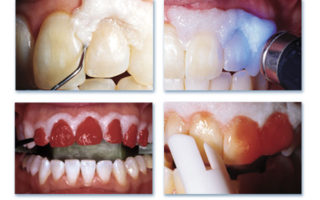 Dentalogy Dental Care - Wedding Whitening Opalescence 1