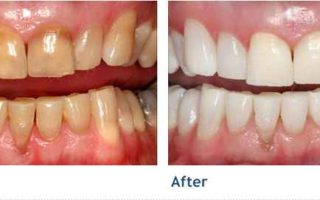 Dentalogy Dental Care - Wedding Whitening Opalescence 3