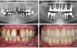 Dentalogy Dental Implant - Implan Gigi12