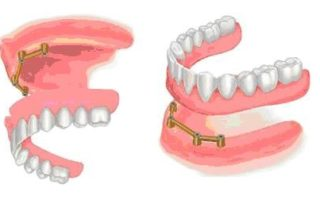 Dentalogy Dental Implant - Implan Gigi13