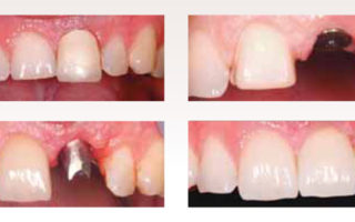 Dentalogy Dental Implant - Implan Gigi 17