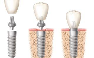 Dentalogy Dental Implant - Implan Gigi3