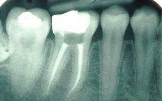 Dentalogy Root Canal Treatment - Perawatan Saluran Akar 2