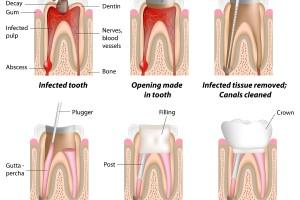 Dentalogy Root Canal Treatment - Perawatan Saluran Akar 9