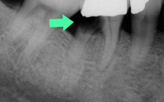 Dentalogy Tooth Extraction - Pencabutan Gigi 11