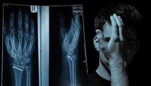 Jean Paul Rüdisüli zeigt beschämt eines der gebrochenen Handgelenke.