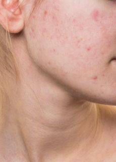 acne, trattamenti dermatologo cagliari guicciardi