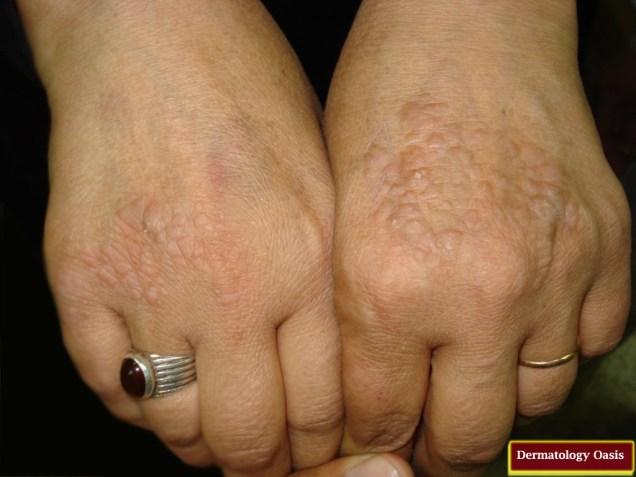 Acrokeratosis verruciformis of Hopf