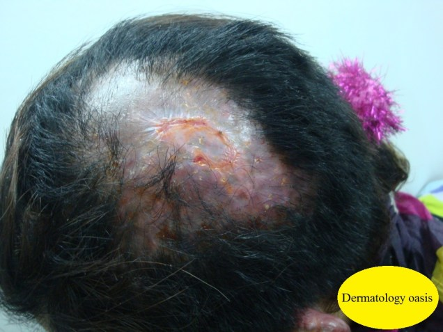 Localized scarring alopecia