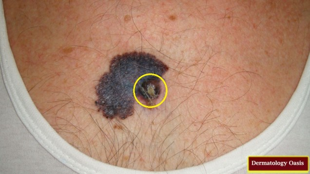 Nodular melanoma complicating congenital melanocytic nevus