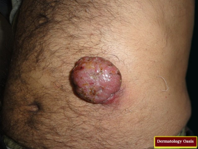 Secondary cutaneous plasmacytoma