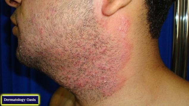 Tinea barbae