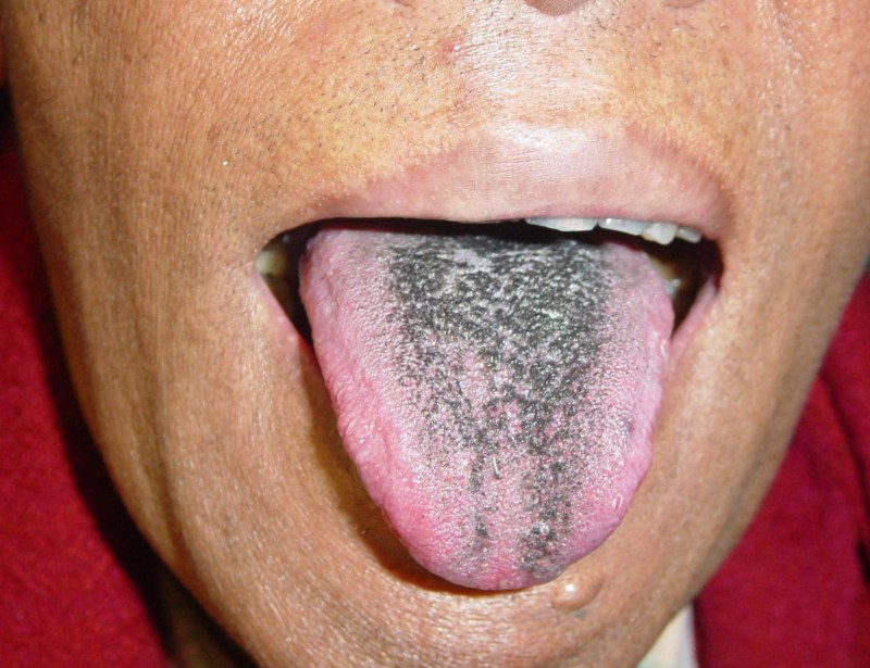 Large Of Black Spots On Tongue