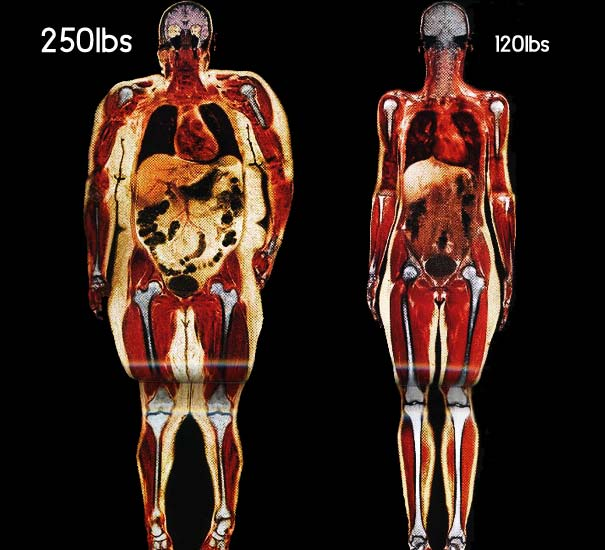 Body Fat Scan Obese Person vs. Normal Person