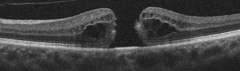 Hole - Macular Pucker and Macular Hole