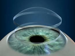 corneal transplant-original size