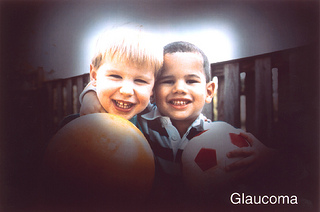 glauccoma diabetic eye disease