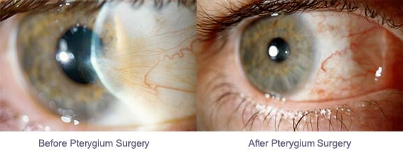 pterygium before & after