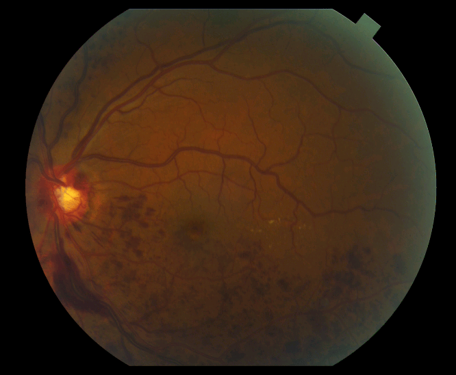 Figure 2. A retinal vein occlusion with hemorrhages seen as the red spots in the bottom half of the image.