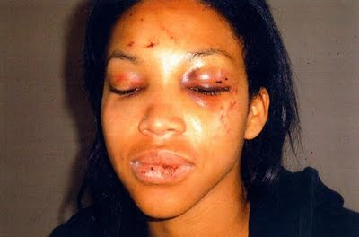 battered victim lwtze LWTZE: The War Against Domestic Violence