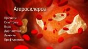 Атеросклероз. Симптомы, причины и лечение атеросклероза