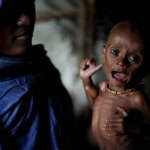 starvingchild_somalia