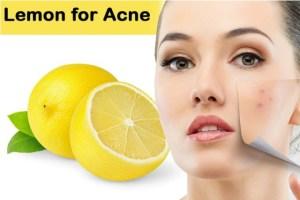 lemon for acne treatment