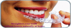 Invisibel braces by Dr Bharat Agravat, Ahmedabad, gujarat, India