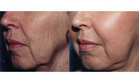 Before-and-After-Full-Face-Laser-Resurfacing