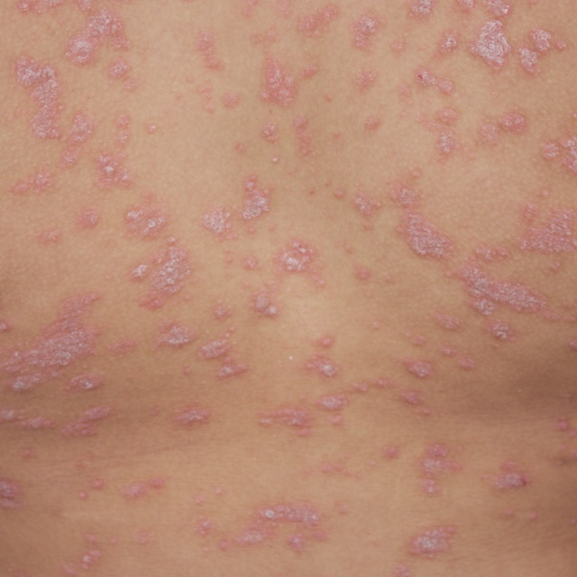 Guttate psoriasis - knowing when it is time to treat.. and ... Guttate Psoriasis