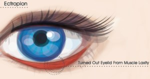 Ectropion-Repair-dr.-massry-beverly-hills-ca
