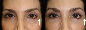 Non Surgical Eye Rejuvination