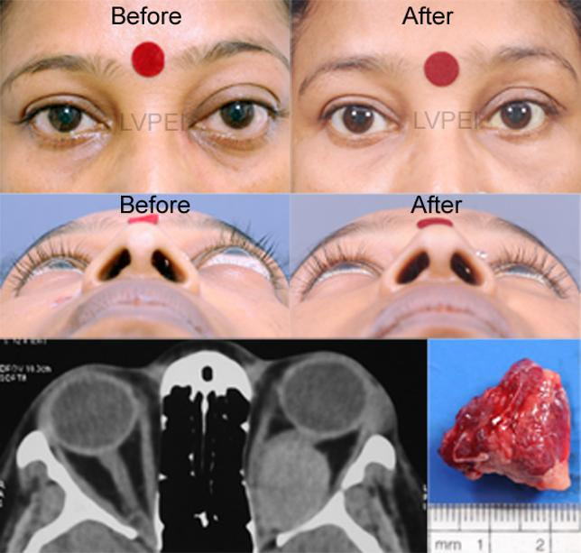 A Middle Aged Lady With Benign Tumor Behind The Right Eye Removal Was Performed By Minimally Invasive Technique Via Hidden Incision