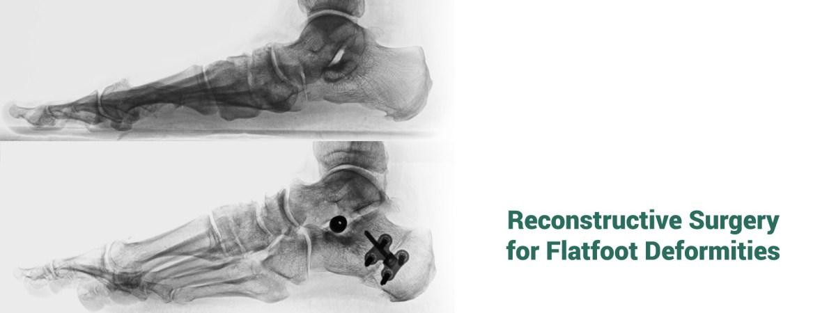 flatfoot Dr. Campitelli