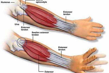 Forearm Pain A New Treatment For An Old Problem