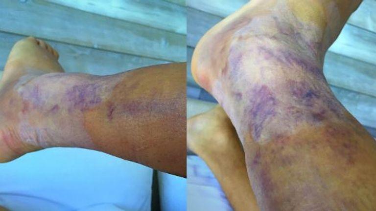 Alexis Sanchez shows off his injuries (Copyright: Twitter @Alexis_Sanchez)