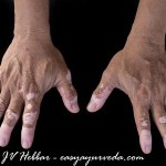 Vitiligo Ayurveda