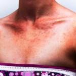 Prickly Heat – Ayurvedic Treatment, Medicines, Remedies
