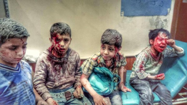 ALEPPO INJURED BOYS