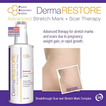 Tired of looking at all your Stretch Marks or scars? Want to make a CHANGE today?  What is DermaRESTORE?   For almost as long as women have been giving birth, women have been looking for a way to prepare and prevent stretch marks. This revolutionary ...