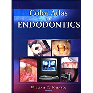513HF3184ML. SL500 AA300  Download Color Atlas of Endodontics PDF