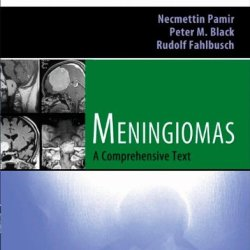 Meningiomas: Expert Consult - Online And Print, 1E (Expert Consult Title: Online + Print)